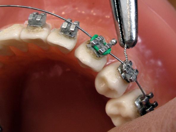 Braces on small teeth