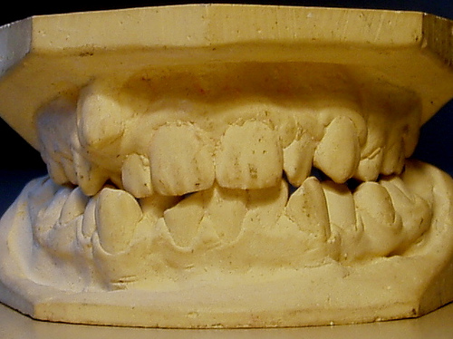 crooked teeth means more space for new teeth needed
