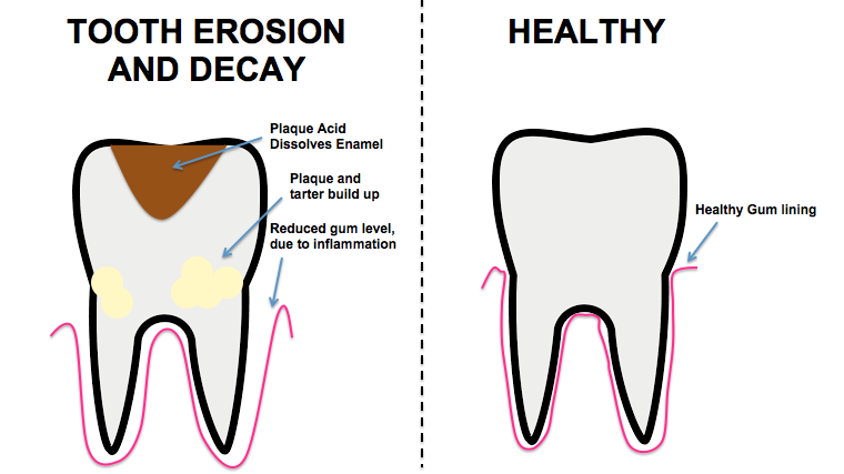 What is a cavity? From plaque to tooth decay