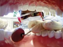 Looking for cavities