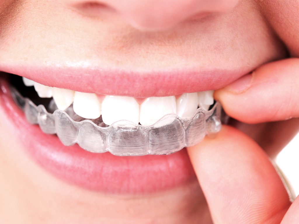 Second Hand Smile Direct Club Clear Aligners