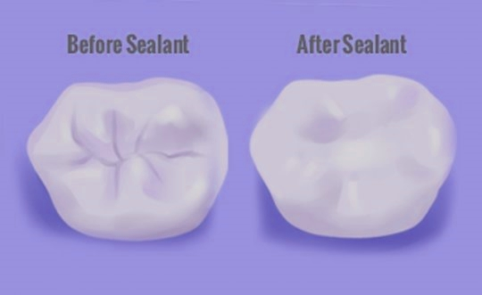 My Dentist Suggested Sealants. What Are They?