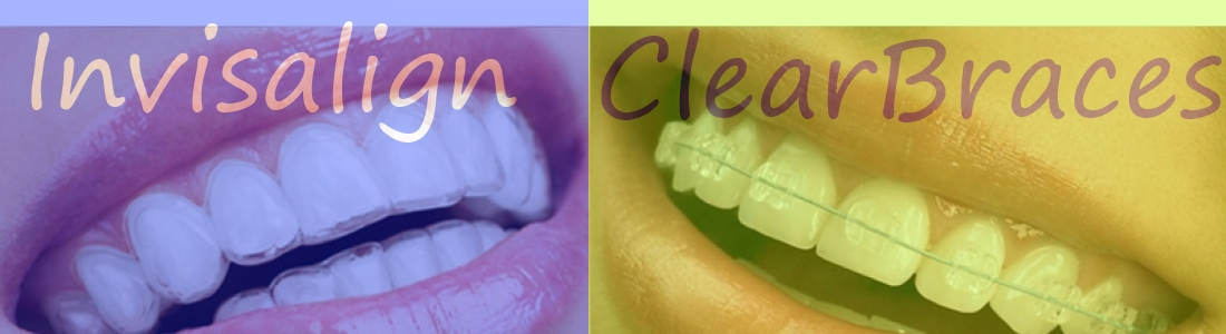 Clear Braces vs. Invisalign: Differences, Options, and Prices
