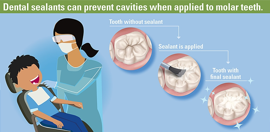 Diagram showing the process of getting dental sealants