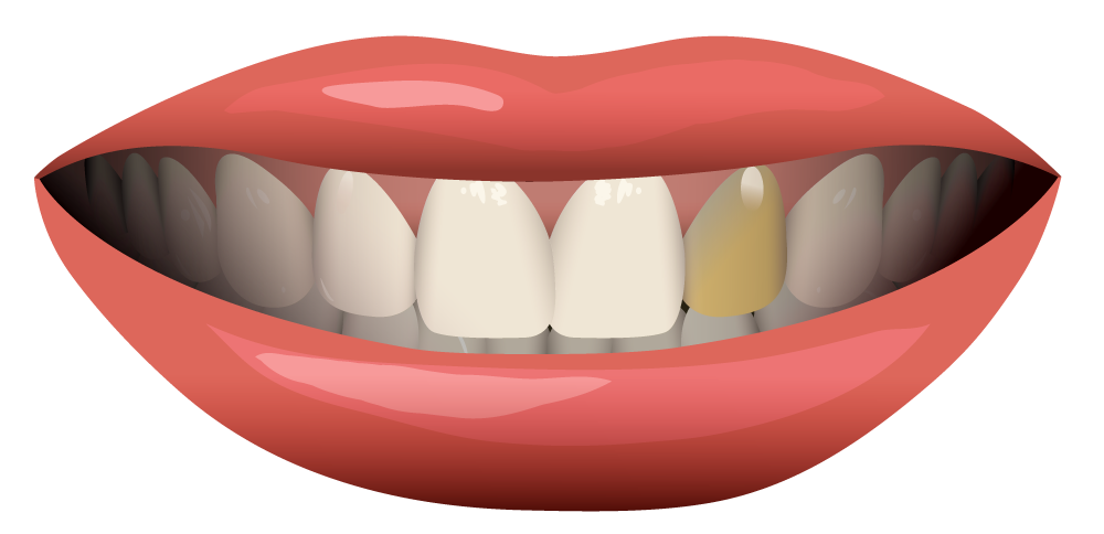Can Dental Crowns Be Whitened?