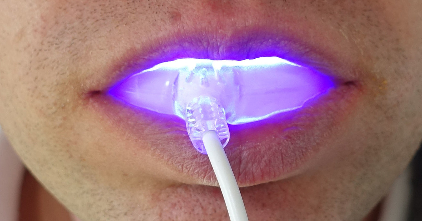 Person using at-home uv light teeth whitening device