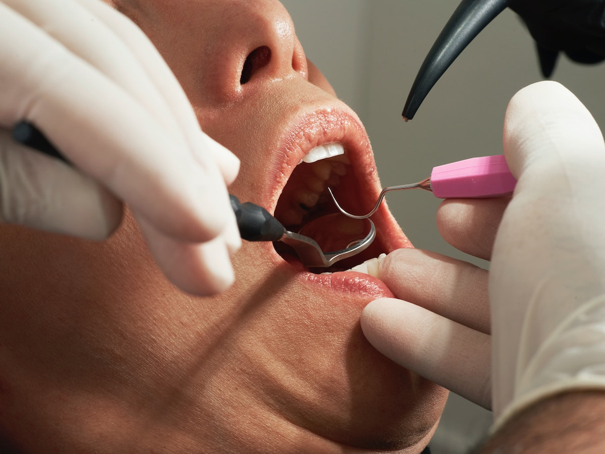 Can Cavities Go Away by Themselves? Why No One Should Put Off Dental Care