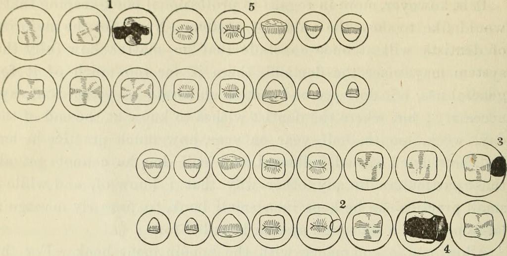 Dental Fillings: A User's Manual