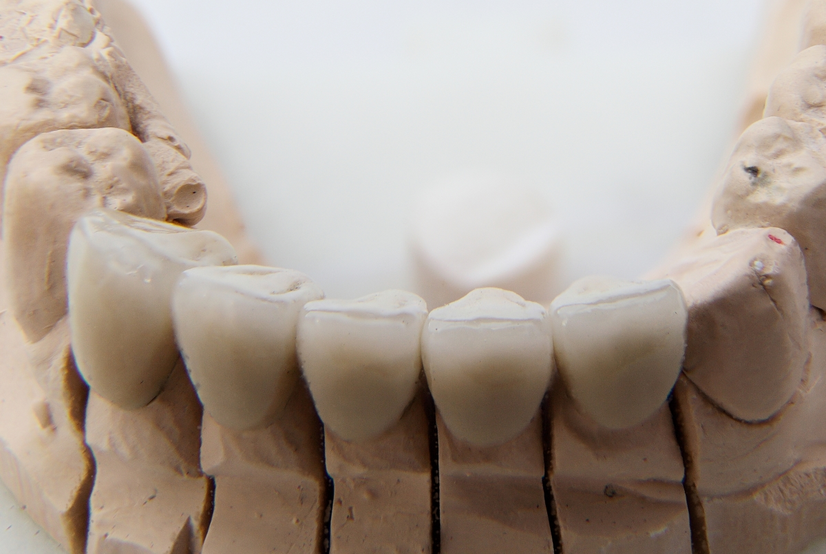 dental crowns on model of mouth