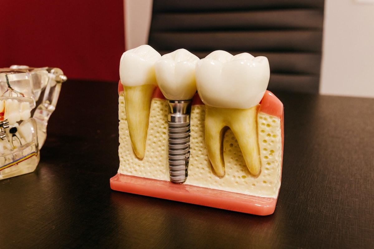Model of gums cross-section , showing dental implant crown and abutment