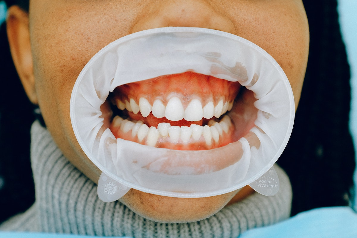 Person with dental cheek retractor so dentist can check for signs of gum disease