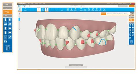 computer software showing planned movements with invisalign