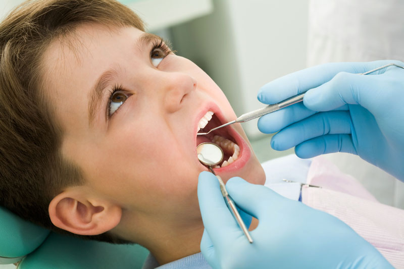Should You Put Sealants on Baby Teeth?