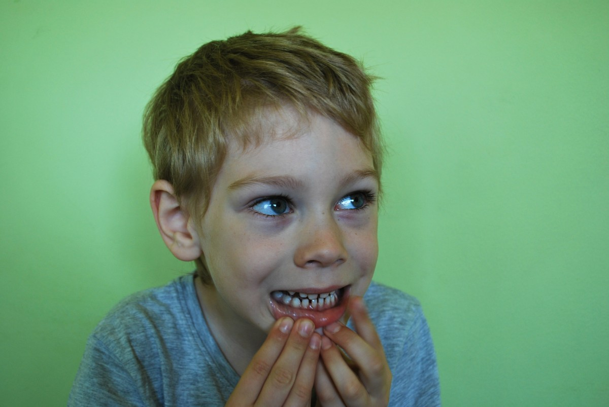 kid moving lower lip to look at baby teeth