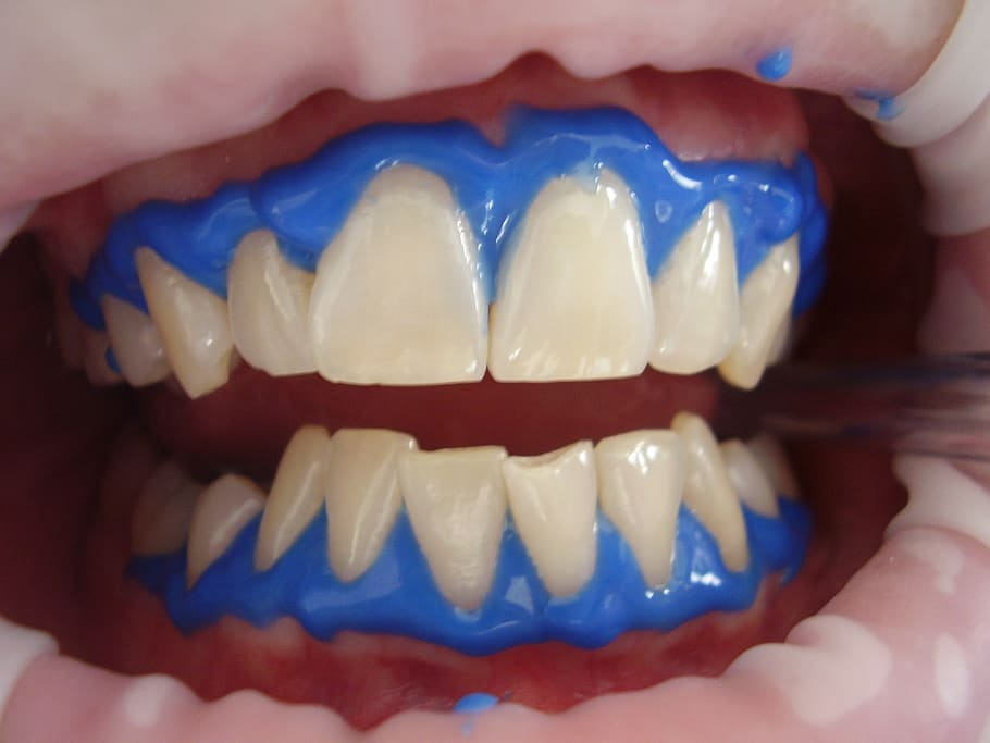 Patient being prepped for teeth whitening at the dentist