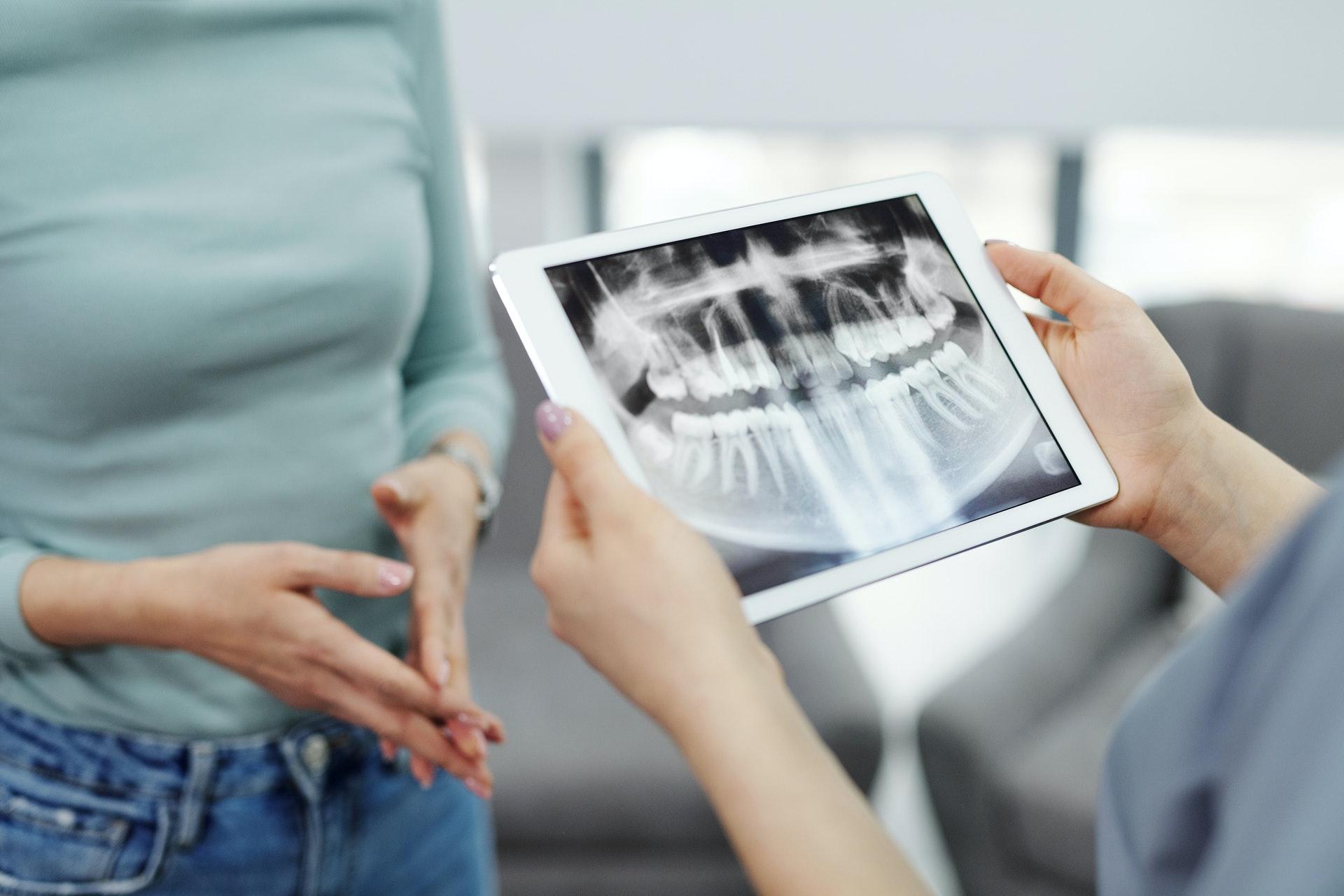 dental x-ray panoramic