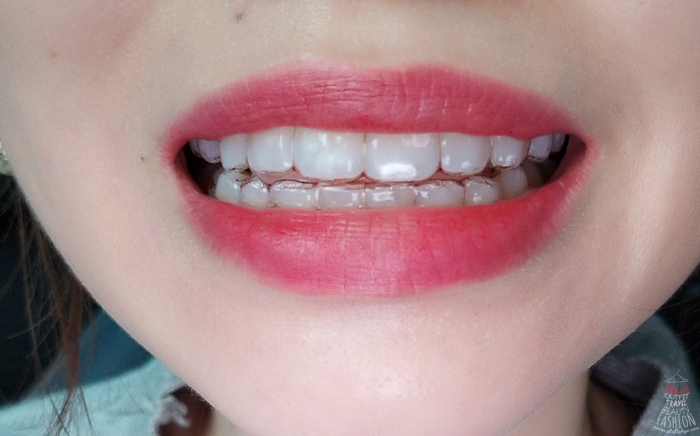 Close-up of woman's mouth wearing Invisalign