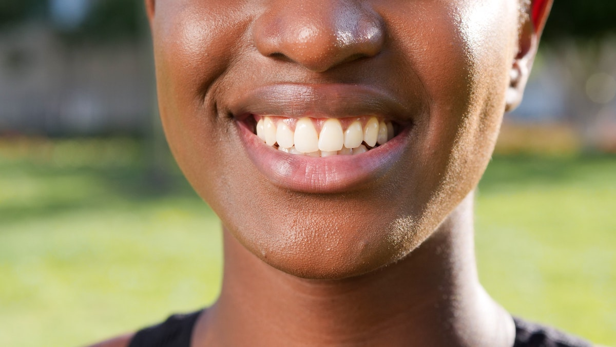 What is Carbamide Peroxide Teeth Whitening?