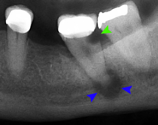 x-ray showing a dental abscess around the root of a tooth